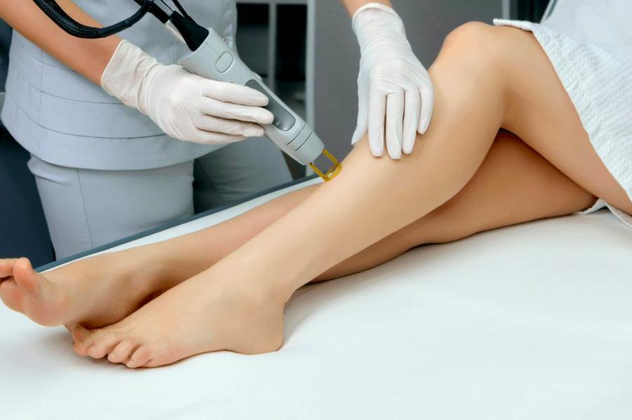 Can You Shave Before or After Laser Hair Removal? 1