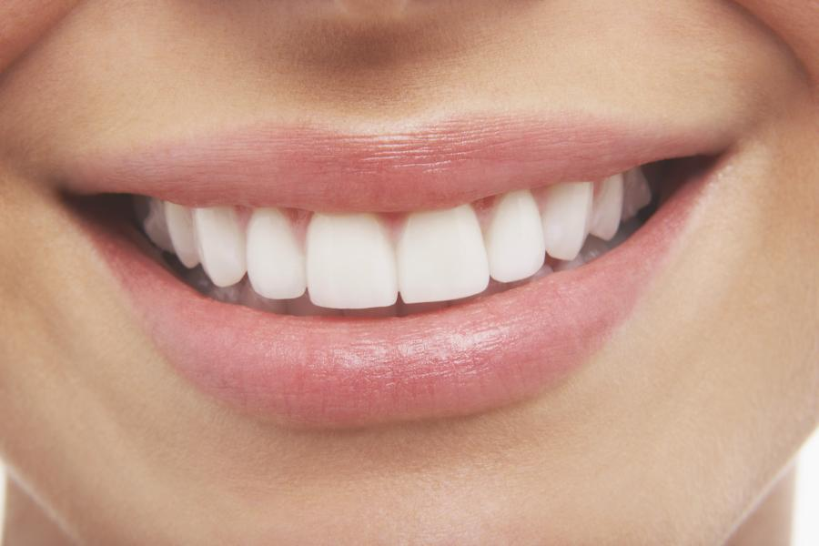 The Ultimate Guide to Shaving My Teeth 3